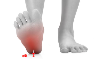 "Do You Have ""Plantar Fasciitis""?"